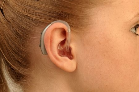 Hinter-dem-Ohr-Hörsysteme (HdOs) – Mit Ohrstück