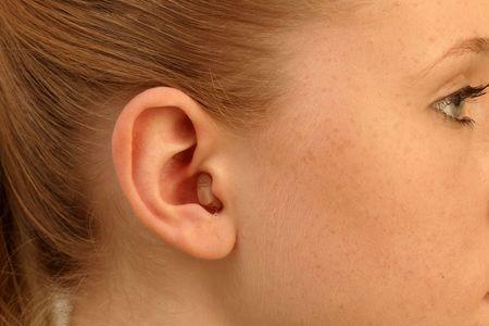 Im-Ohr-Hörsysteme (IdOs)